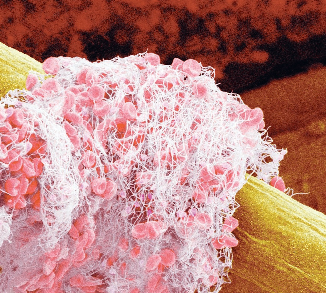Fotoğrafta trombositler ve akyuvarlar görülüyor
