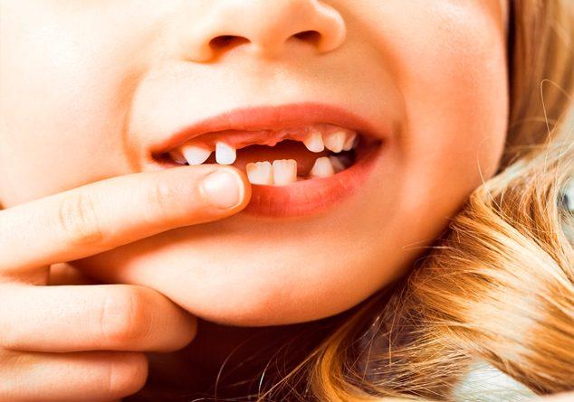 Çocuklarda diş sorunları