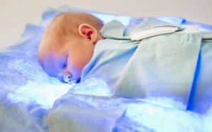 bebek sarılığı