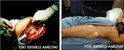 ameliyat1