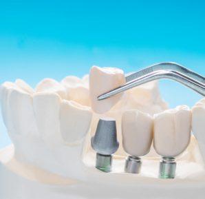 Diş taşı temizliği (Sorularınızın yanıtları)
