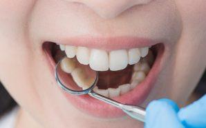Kanal tedavisi yapılan dişlere porselen dolgu (Sorularınızın yanıtları)