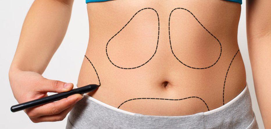 Liposuction ile yağlara veda