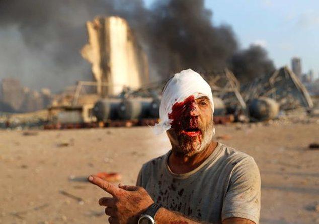 Korkunç Patlamadan Sonra Beyrut