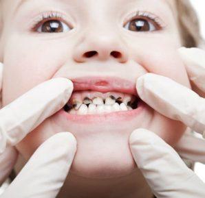 Küçük Çocuklarda Diş Çürüğü (Şişe Çürüğü)