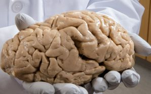 ca_1214NID_Brain_Bank_online