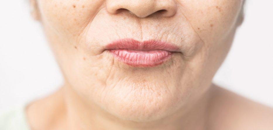 dudak-ustu-kirisikliklari-ve-cizgileri-nasil-gecer