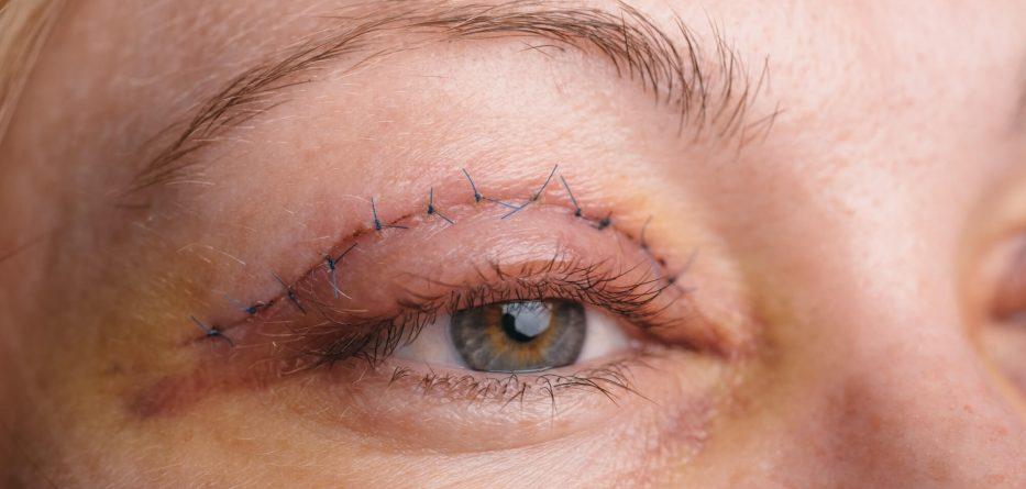 goz-kapagi-kaldirma-ameliyati-nasil-yapilir-estetik-cerrahi-nedir
