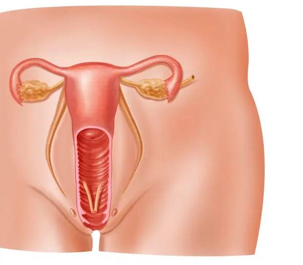 Vaginoplastika emeliyyati haqqinda